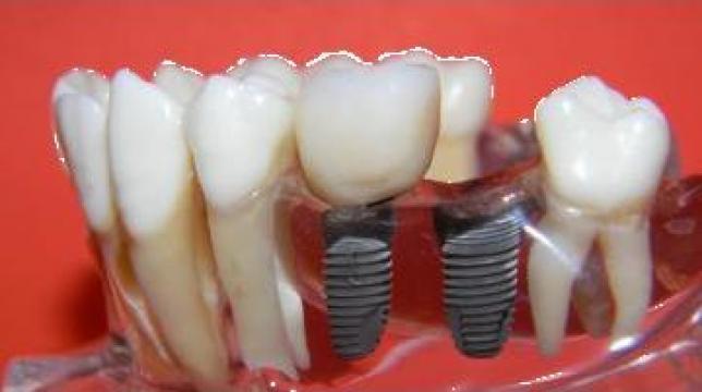 Implant dentar din titan de la Cmi Dr. Brezeanu Andreea