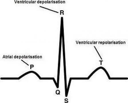 Pulsoximetrie, EKG